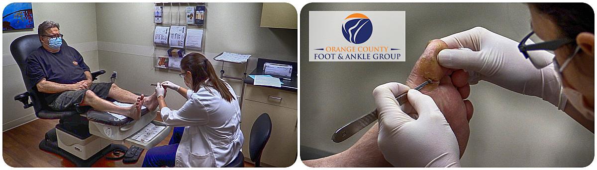 OCfeet.com - diabetic Foot and wound care - OCFA - Surgery - Podiatry - Diabetes Foot care