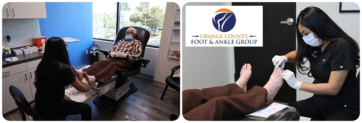Diabetic Foot Care - OCfeet.com - Orange County