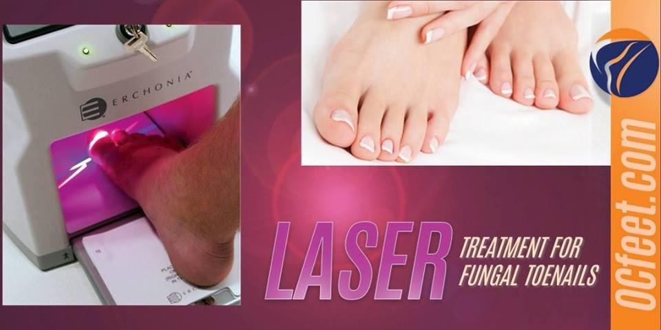 Laser Nail Fungus Image - OCfeet.com