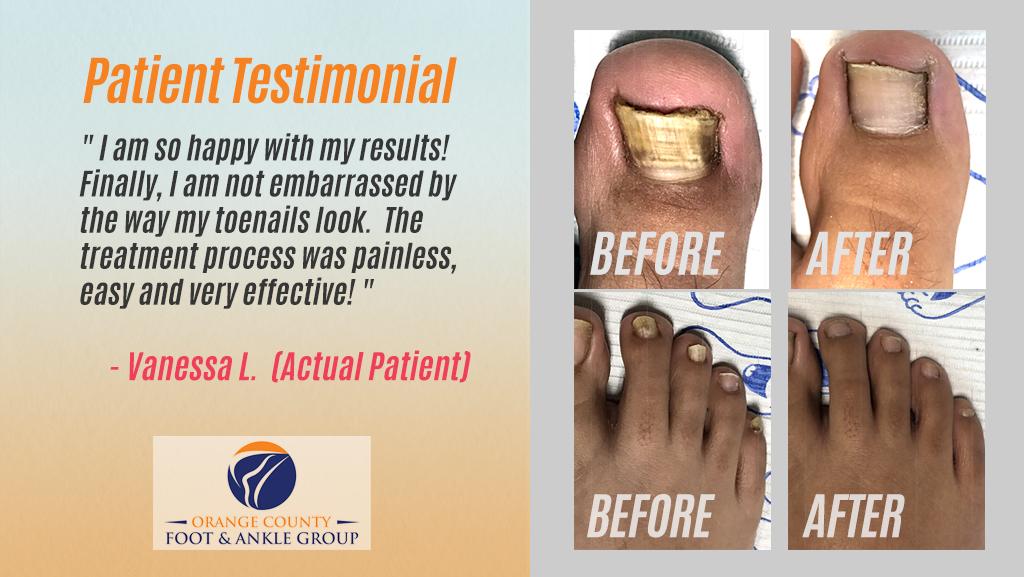 OCfeet.com - Patient Testimonial Vanessa L