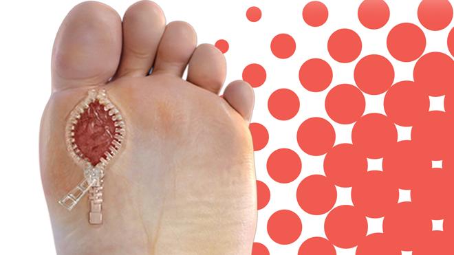 Diabetic Foot and wound care_1_OCfeet.com