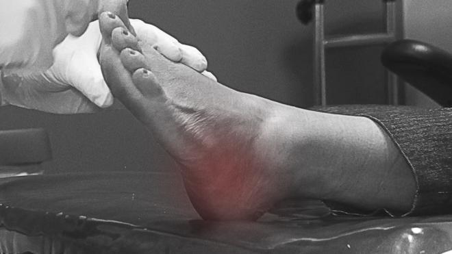 Heel Pain OCfeet.com