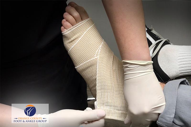 Ankle Sprain - OCfeet.com