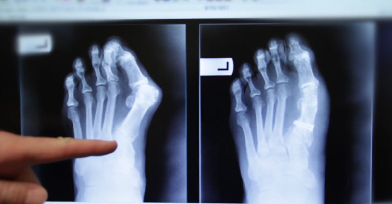 Bunion, OCfeet.com - surgery, x-ray