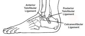 Ankle Sprain_OCfeet.com